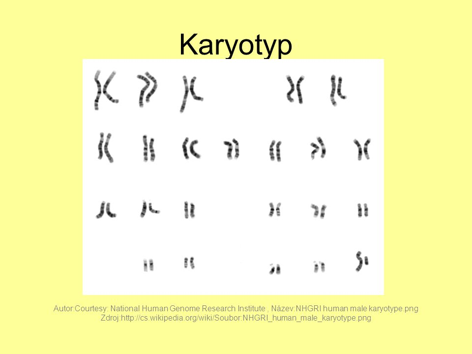 Karyotyp Autor:Courtesy: National Human Genome Research Institute , Název:NHGRI human male karyotype.png.