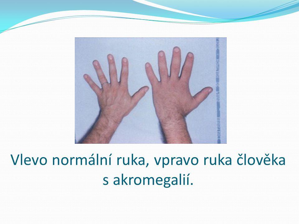 Vlevo normální ruka, vpravo ruka člověka s akromegalií.