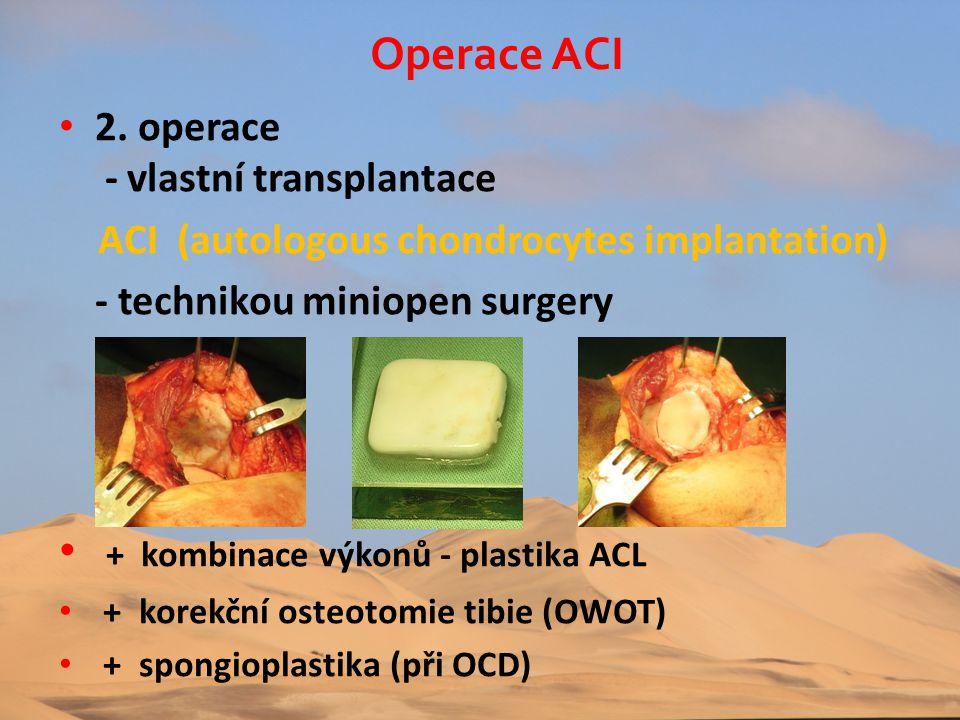 + kombinace výkonů - plastika ACL