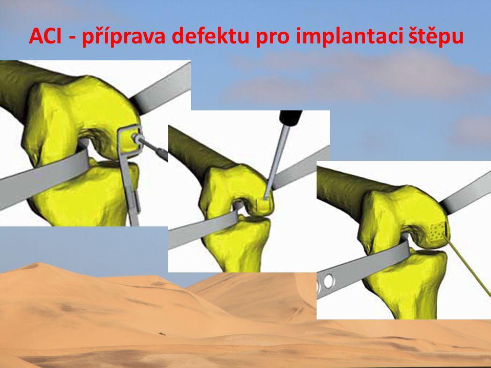 ACI - příprava defektu pro implantaci štěpu