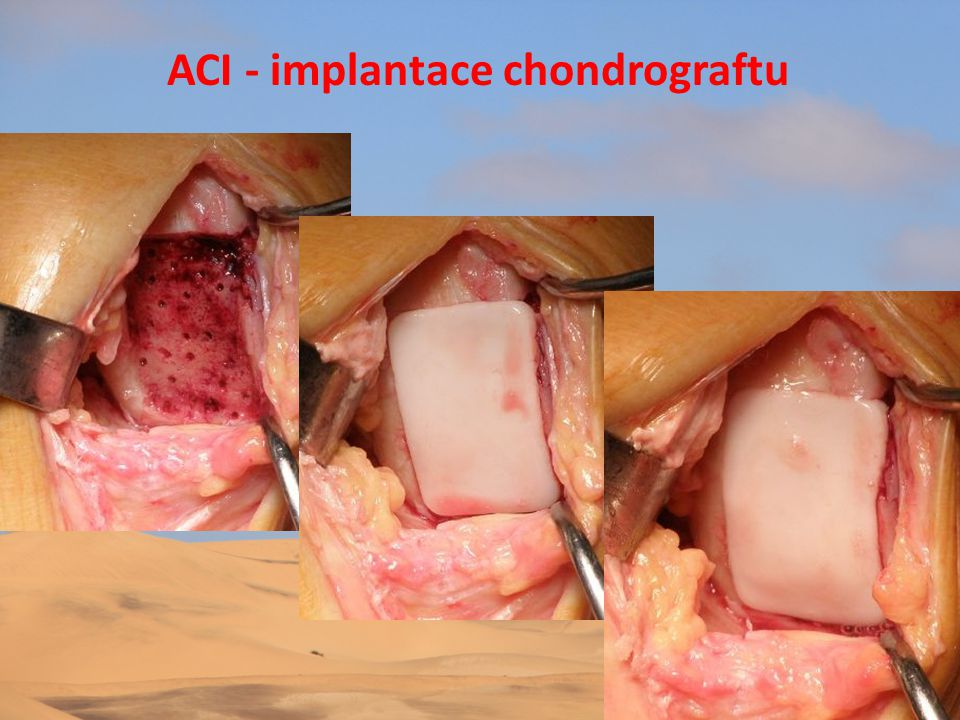 ACI - implantace chondrograftu