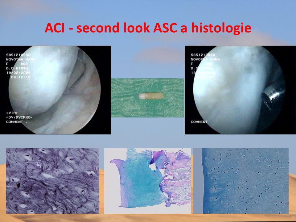 ACI - second look ASC a histologie