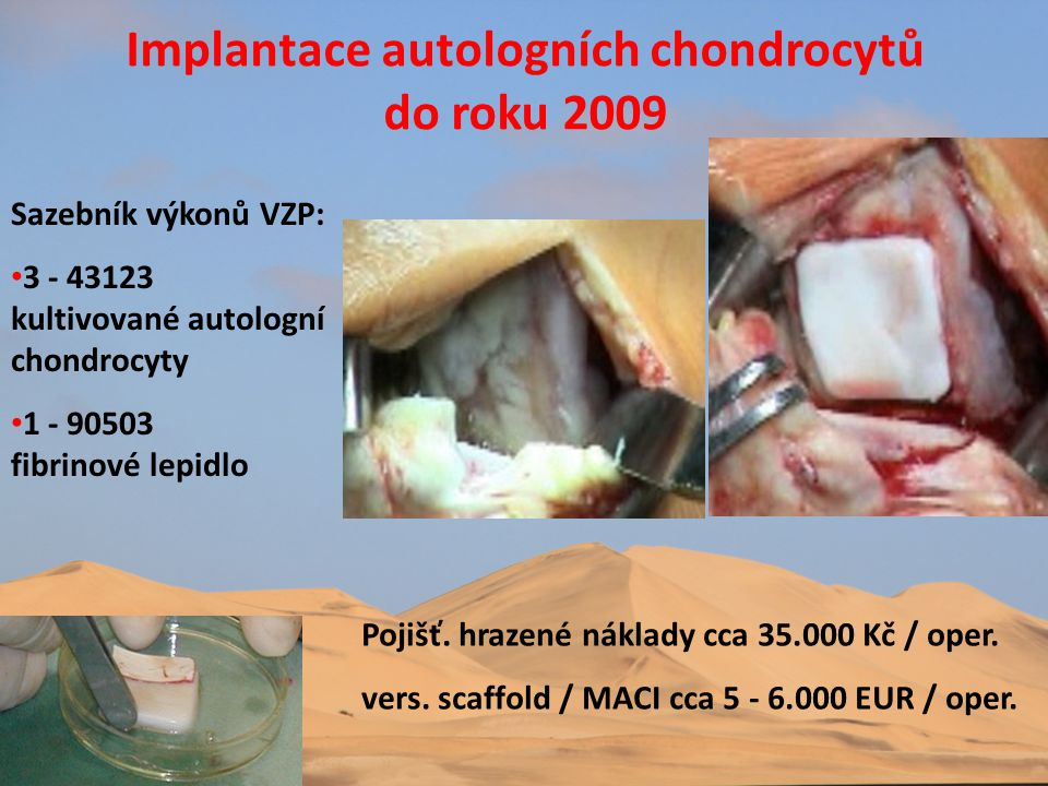 Implantace autologních chondrocytů do roku 2009