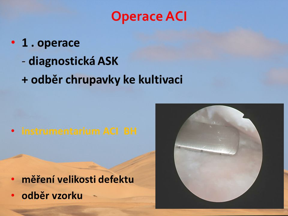 Operace ACI 1 . operace + odběr chrupavky ke kultivaci