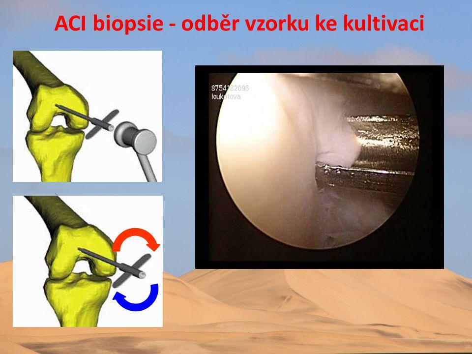 ACI biopsie - odběr vzorku ke kultivaci