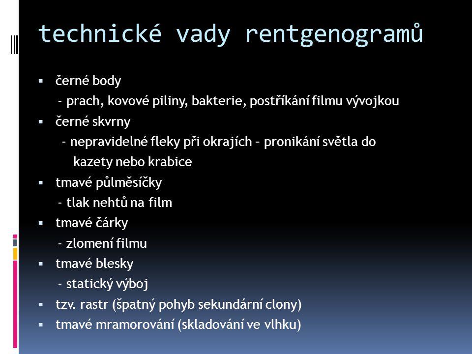 technické vady rentgenogramů