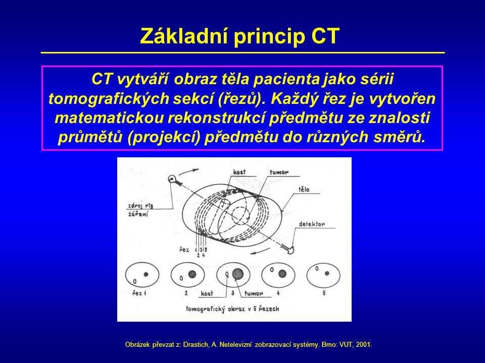 Základní princip CT