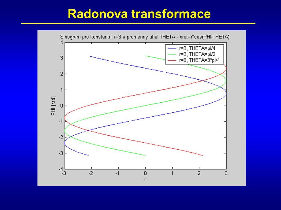 Radonova transformace