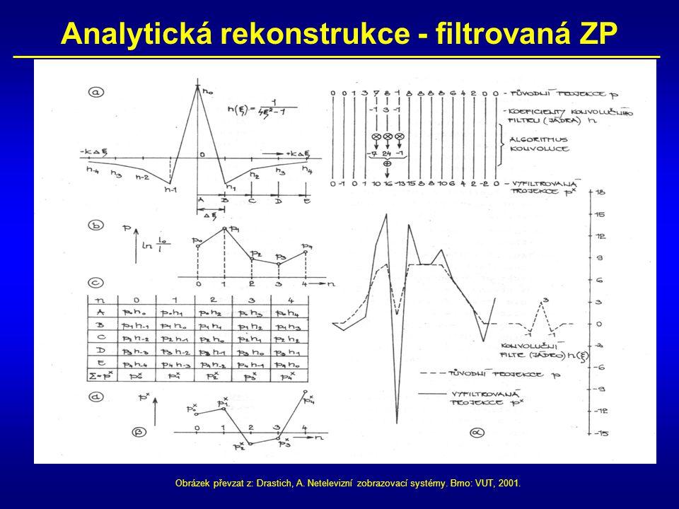 Analytická rekonstrukce - filtrovaná ZP