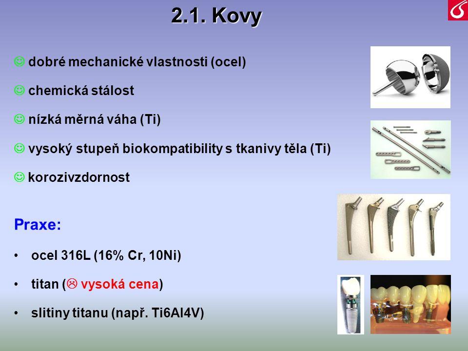2.1. Kovy Praxe:  dobré mechanické vlastnosti (ocel)
