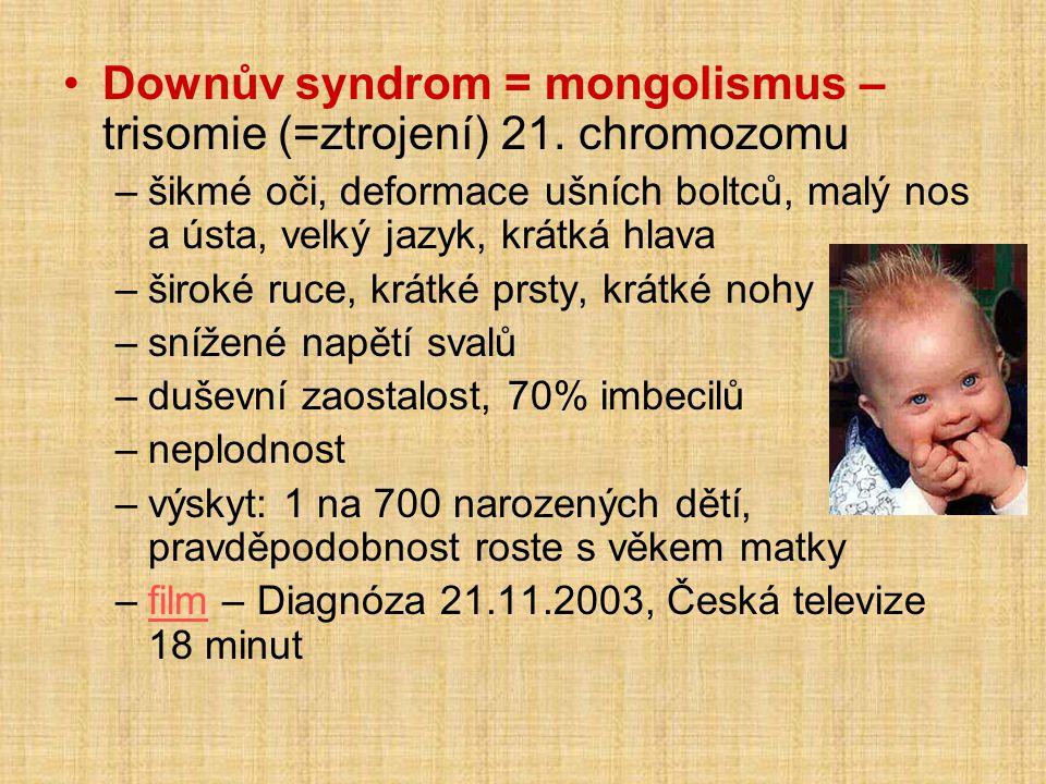 Downův syndrom = mongolismus – trisomie (=ztrojení) 21. chromozomu