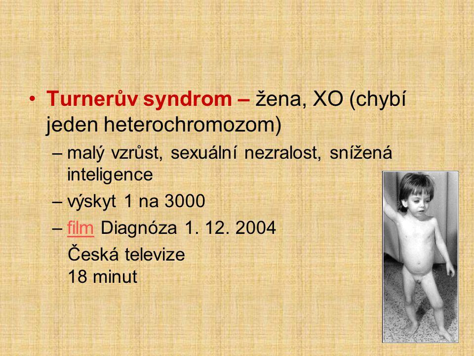 Turnerův syndrom – žena, XO (chybí jeden heterochromozom)