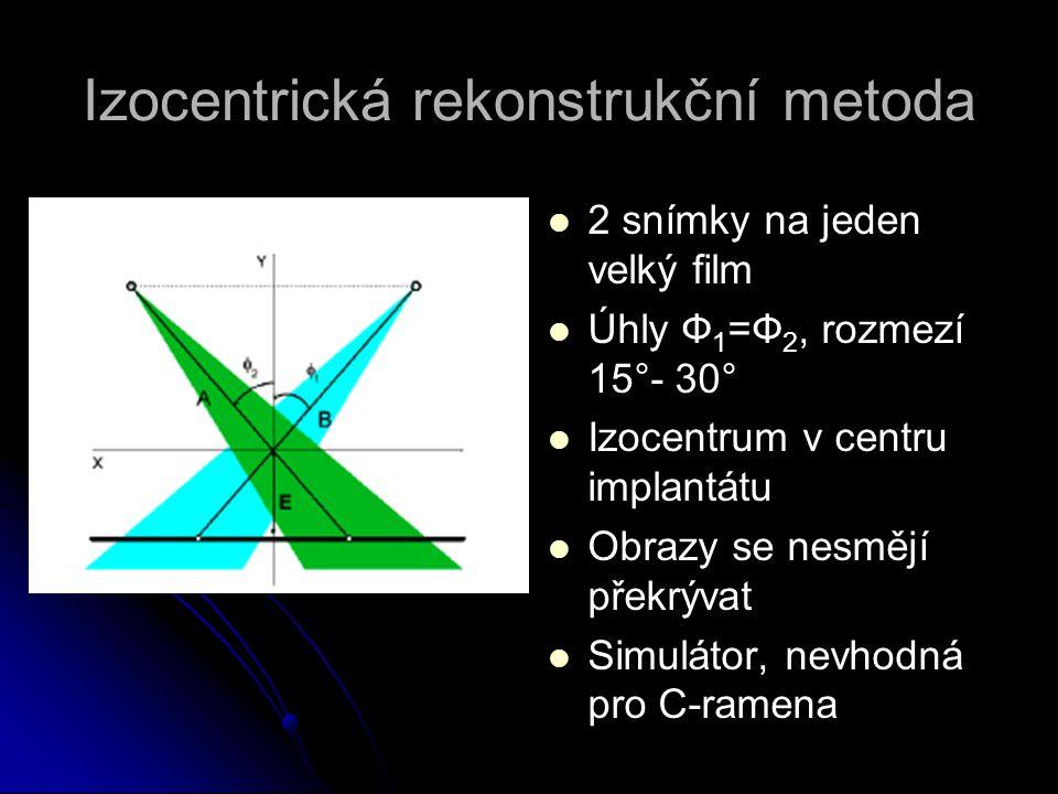 Izocentrická rekonstrukční metoda