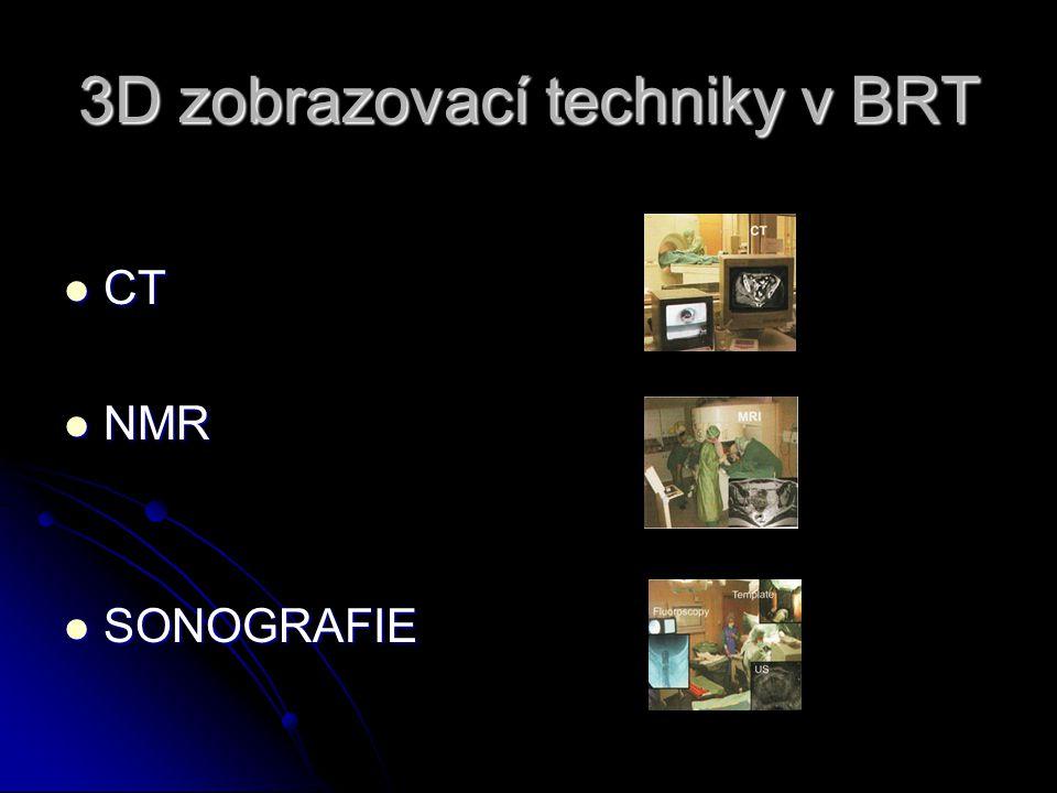 3D zobrazovací techniky v BRT