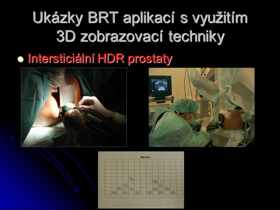 Ukázky BRT aplikací s využitím 3D zobrazovací techniky