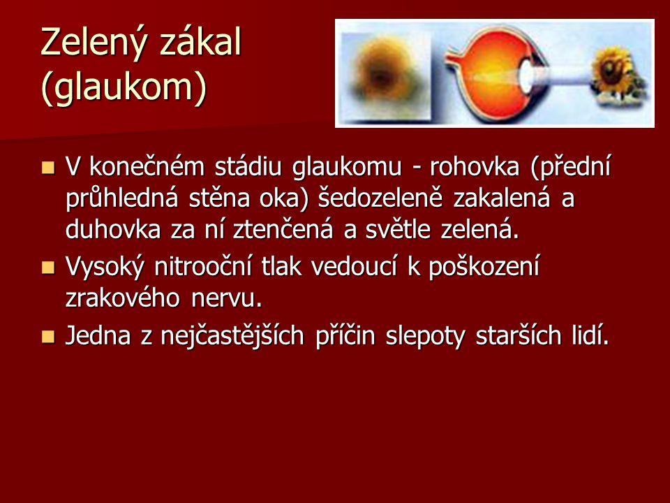 Zelený zákal (glaukom)