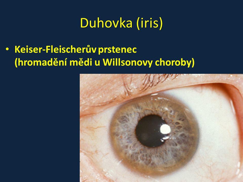 Duhovka (iris) Keiser-Fleischerův prstenec (hromadění mědi u Willsonovy choroby)