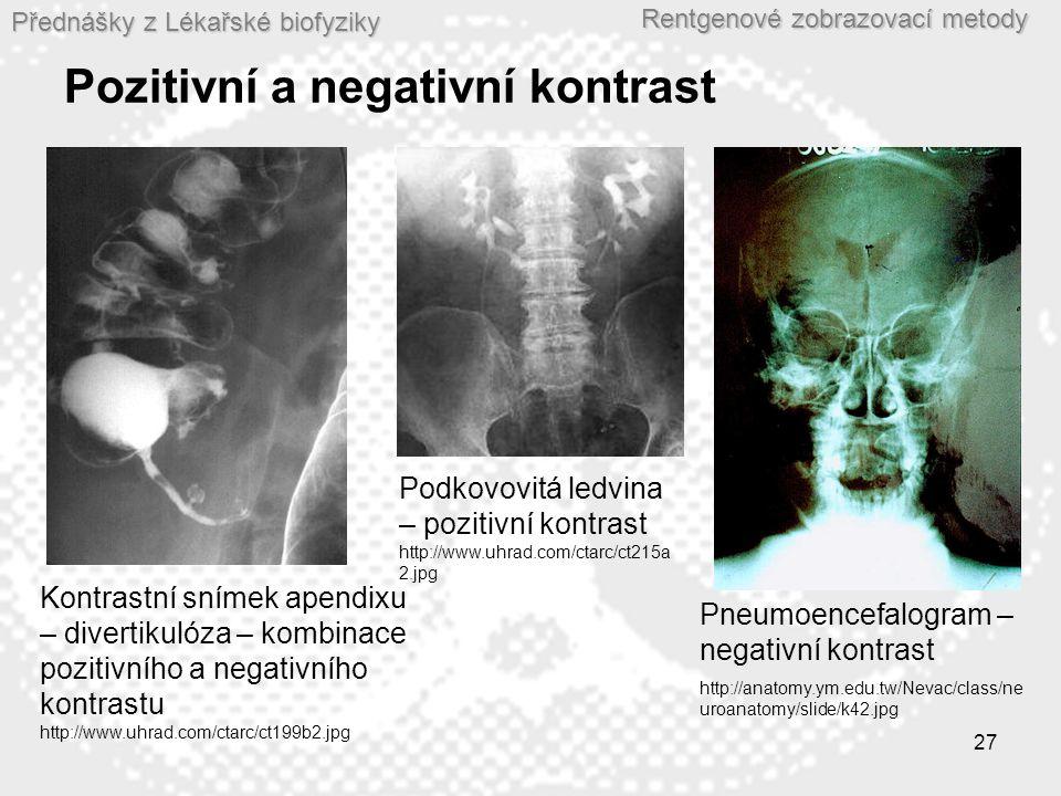 Pozitivní a negativní kontrast