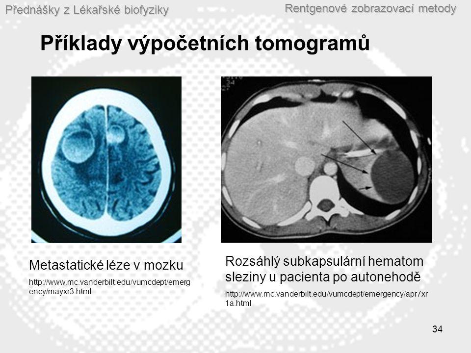 Příklady výpočetních tomogramů