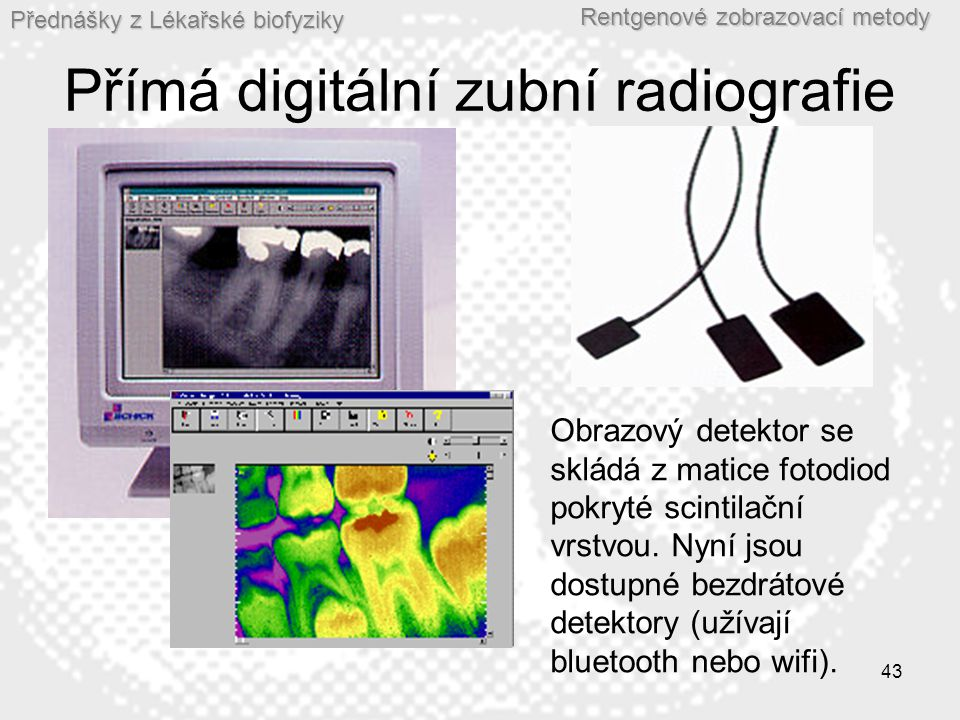 Přímá digitální zubní radiografie