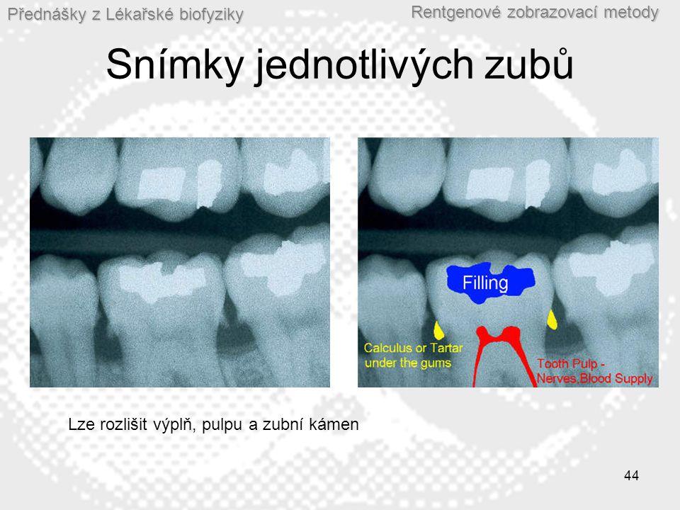 Snímky jednotlivých zubů