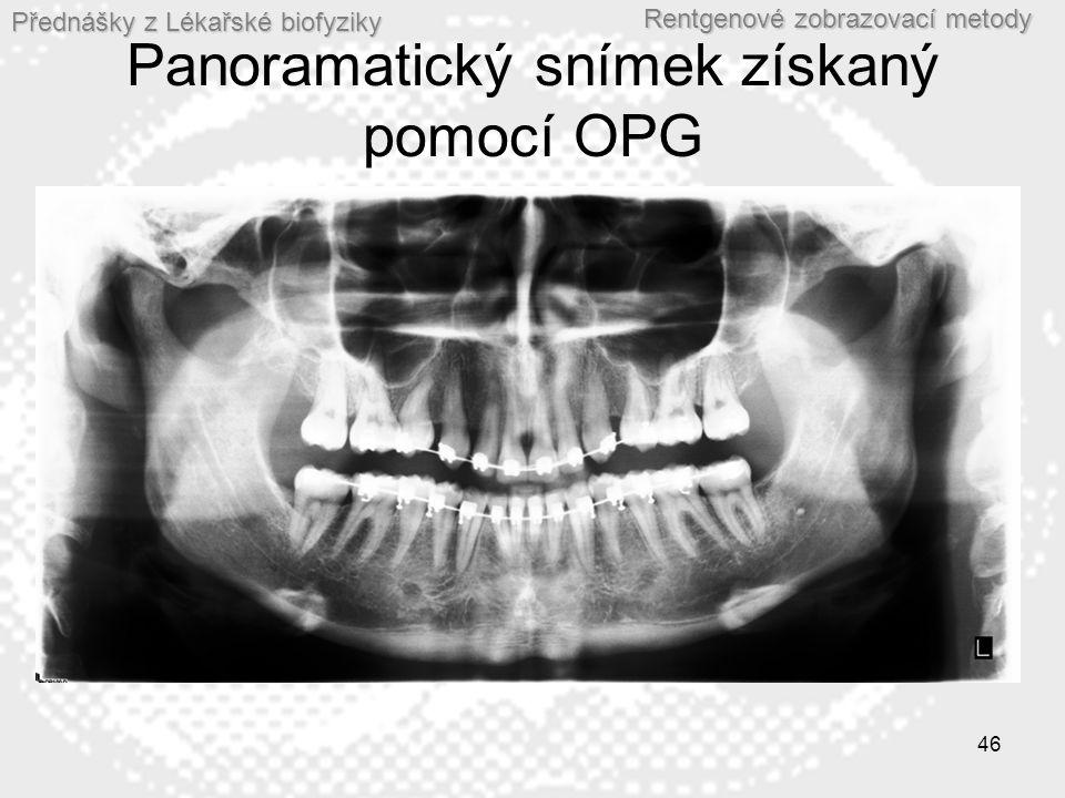 Panoramatický snímek získaný pomocí OPG