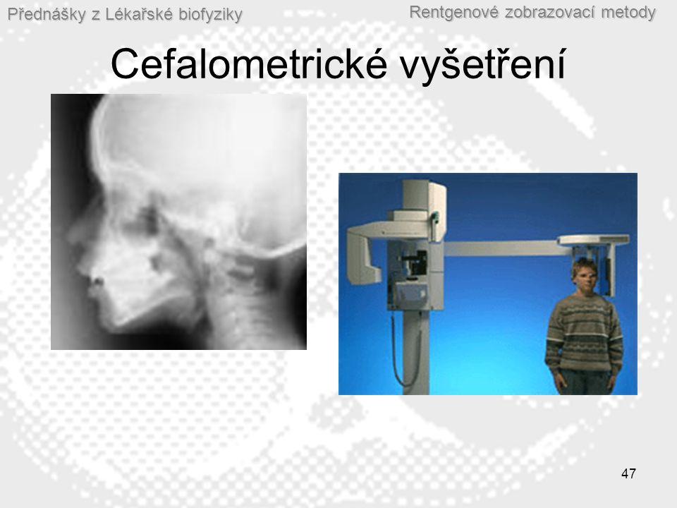 Cefalometrické vyšetření