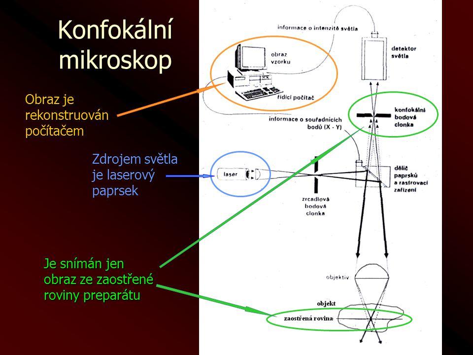 Konfokální mikroskop Obraz je rekonstruován počítačem Zdrojem světla