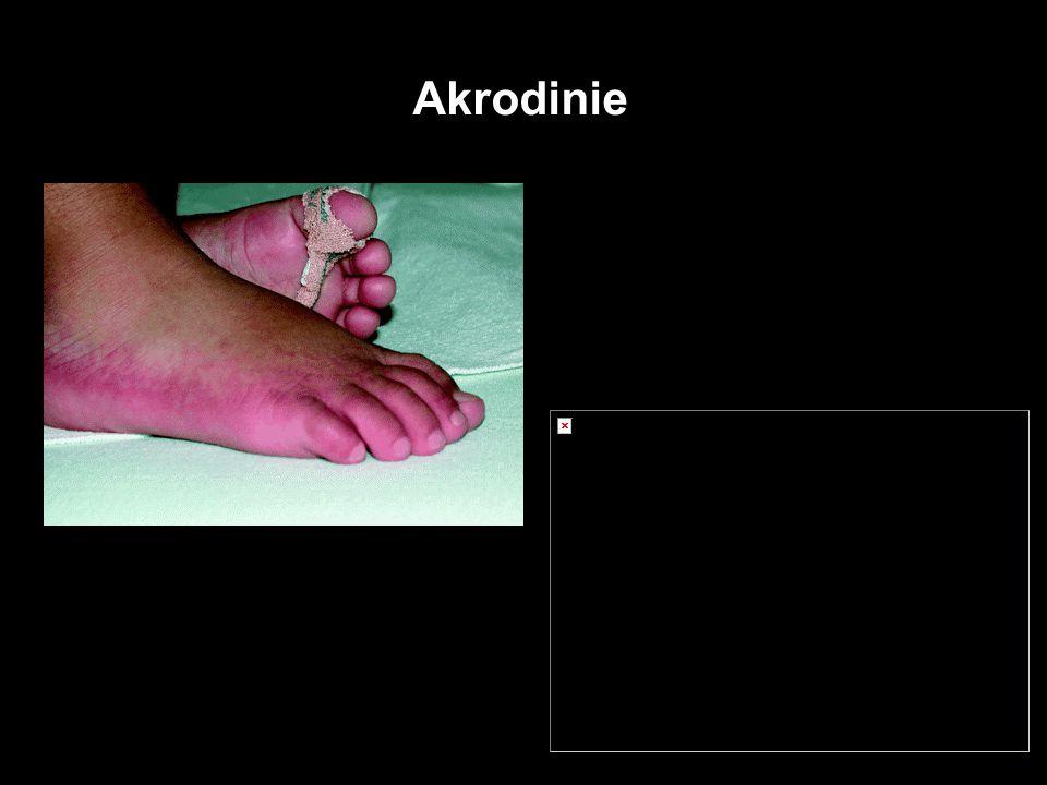 Rtuť Akrodinie Akutní orální toxicita Elementární Hg - akutní účinky