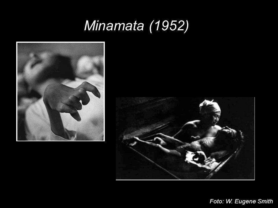 Rtuť Minamata (1952) Organické sloučeniny Hg