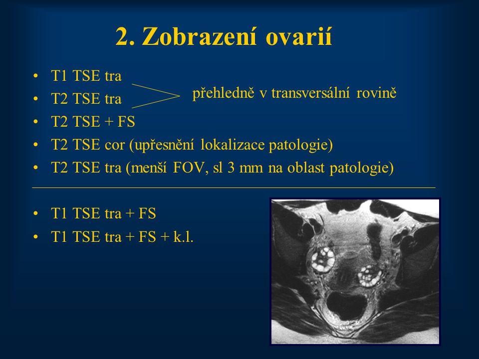 2. Zobrazení ovarií T1 TSE tra T2 TSE tra T2 TSE + FS