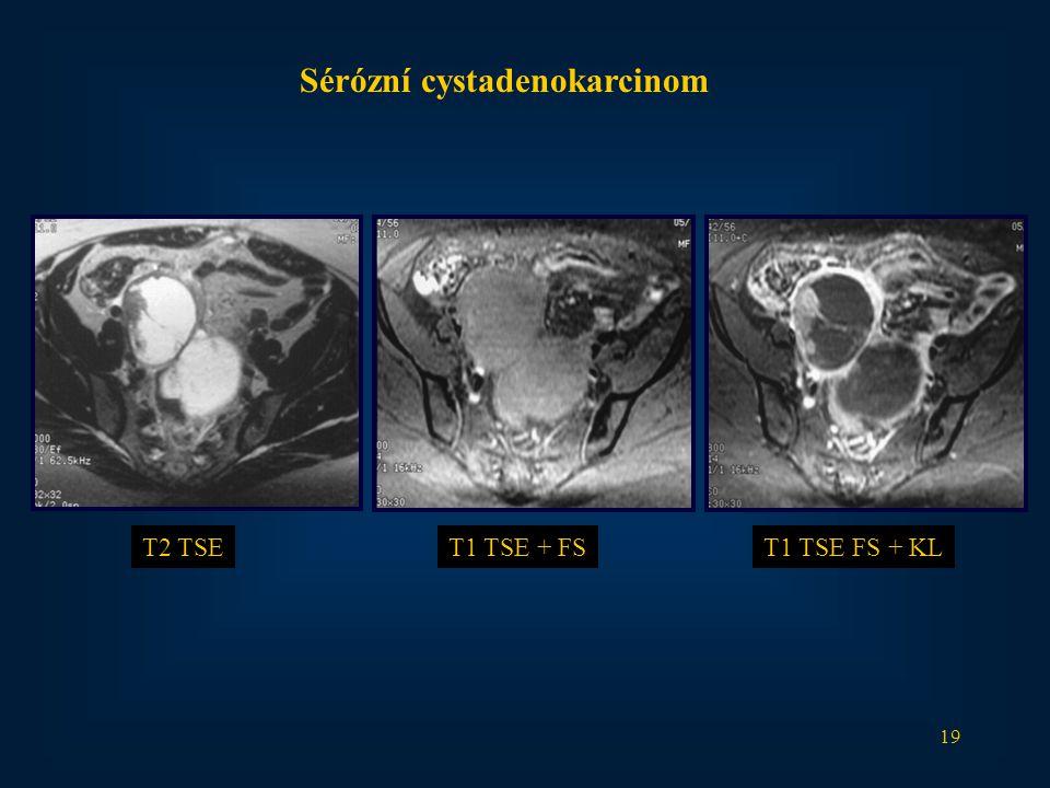 Sérózní cystadenokarcinom