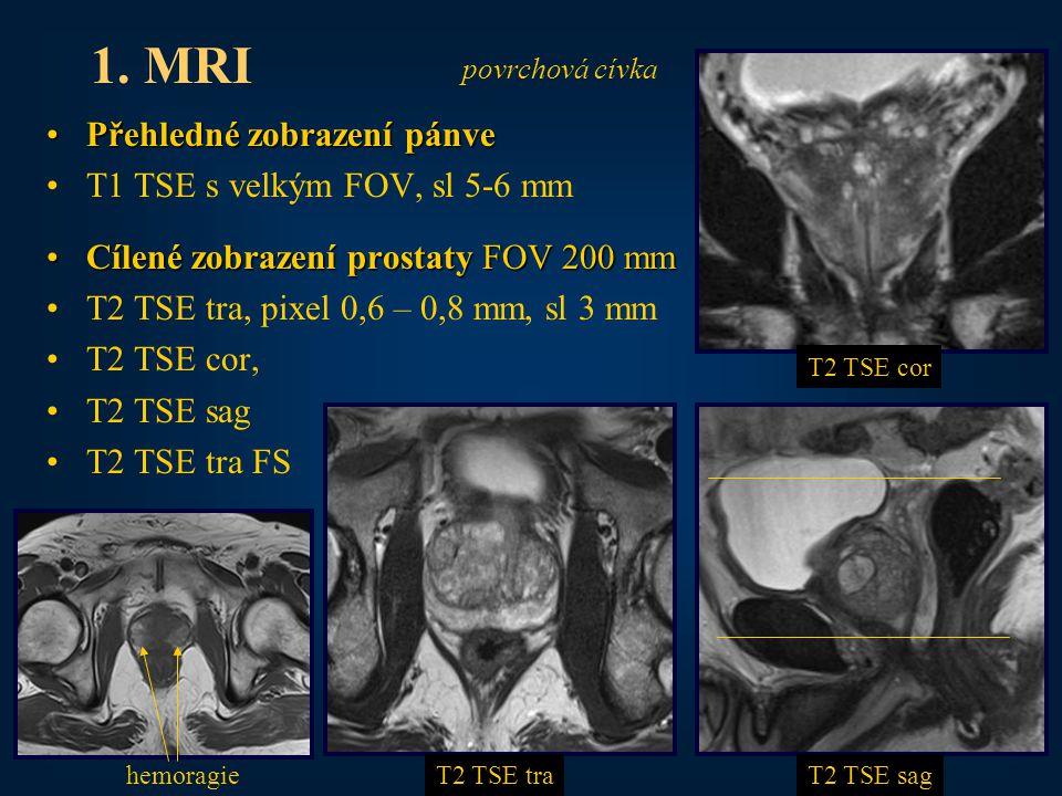 1. MRI Přehledné zobrazení pánve T1 TSE s velkým FOV, sl 5-6 mm