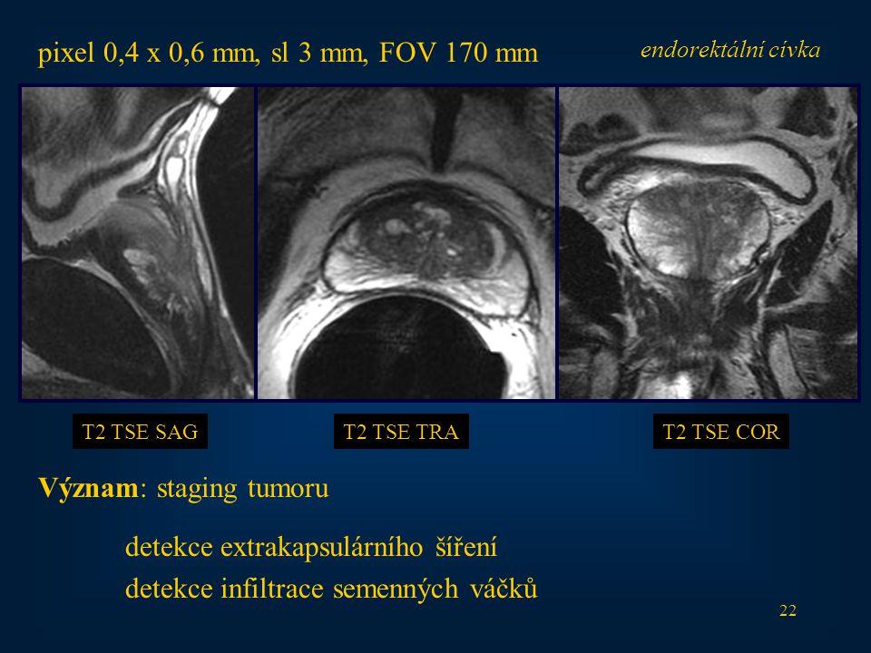 Význam: staging tumoru detekce extrakapsulárního šíření