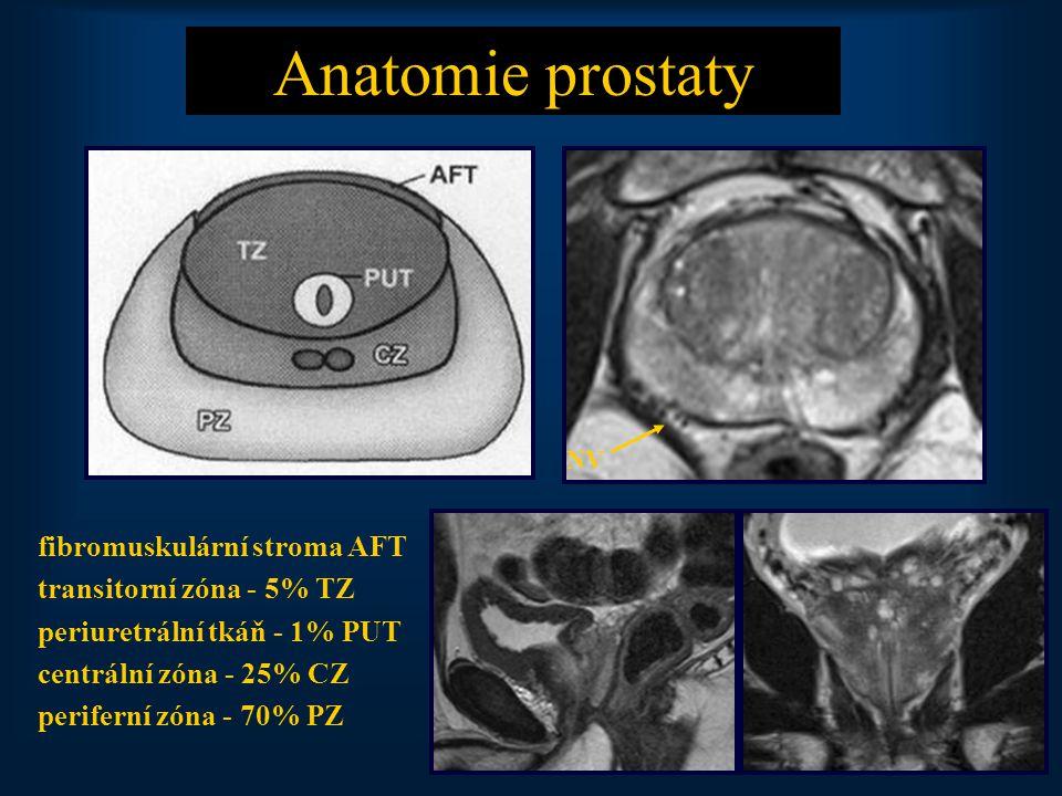Anatomie prostaty fibromuskulární stroma AFT transitorní zóna - 5% TZ