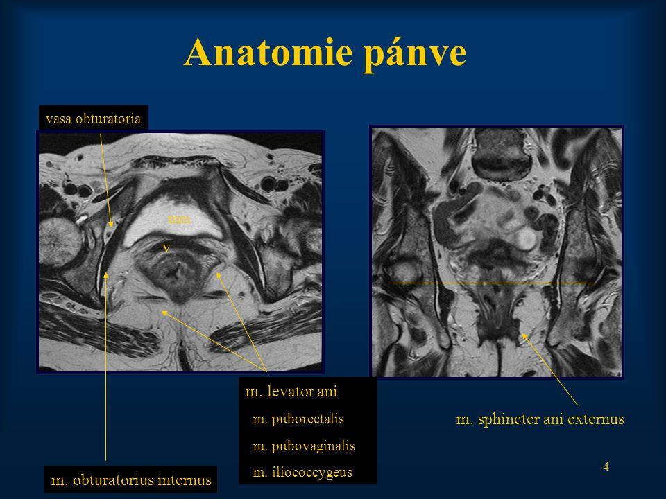 Anatomie pánve v m. levator ani m. sphincter ani externus