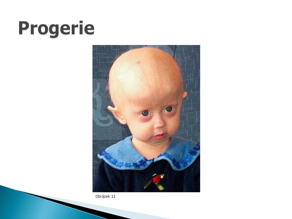 Progerie Obrázek 11