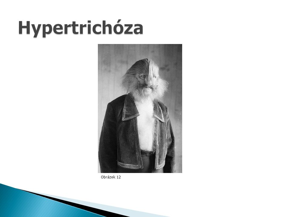 Hypertrichóza Obrázek 12