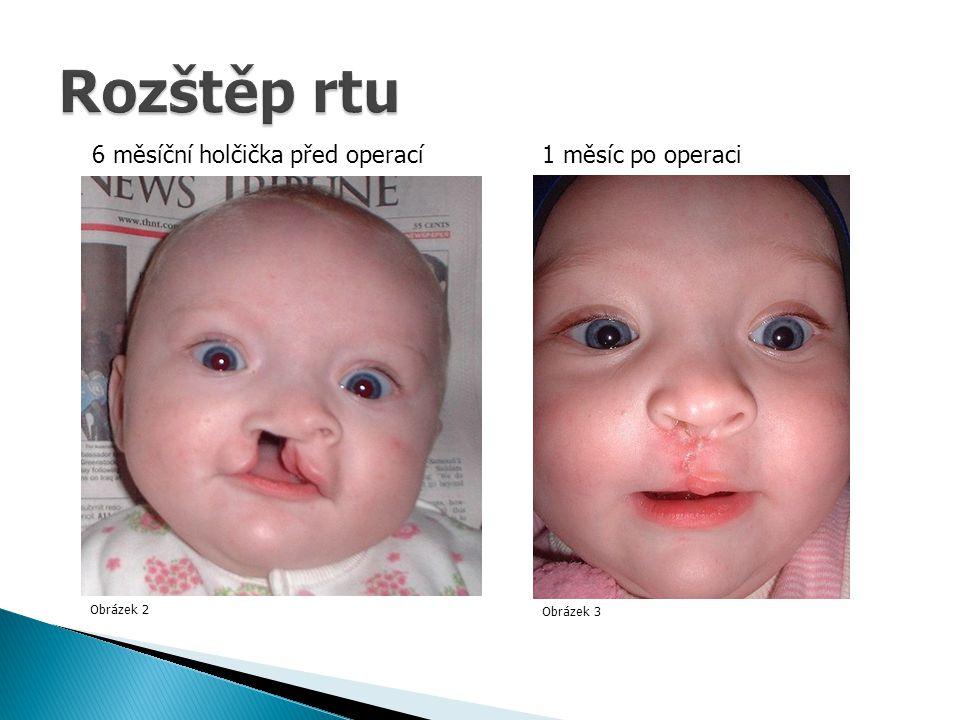 Rozštěp rtu 6 měsíční holčička před operací 1 měsíc po operaci