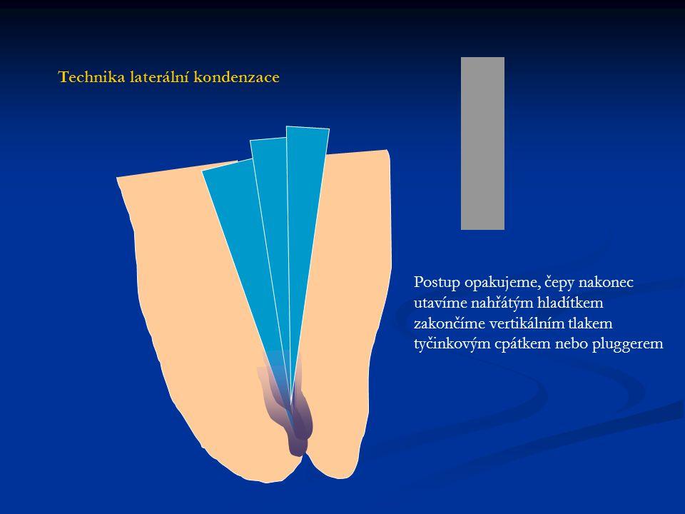 Technika laterální kondenzace
