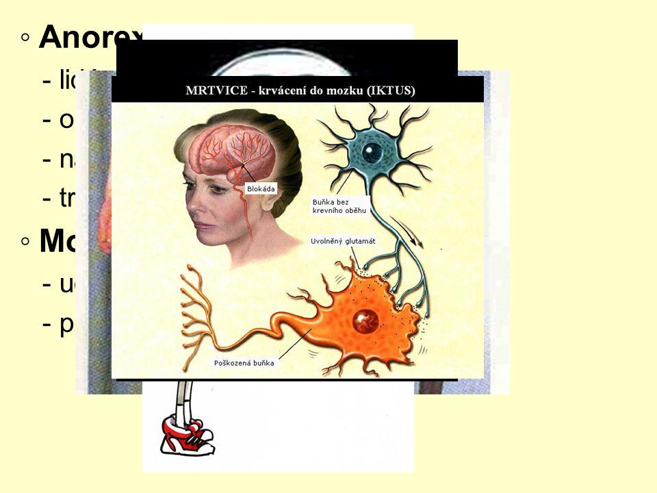 ◦ Anorexie ◦ Mozková mrtvice - lidé si připadají tlustí