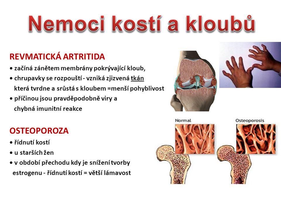 Nemoci kostí a kloubů REVMATICKÁ ARTRITIDA OSTEOPOROZA
