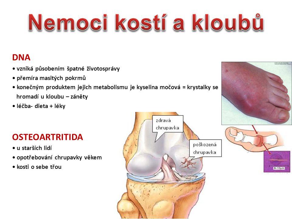 Nemoci kostí a kloubů DNA OSTEOARTRITIDA
