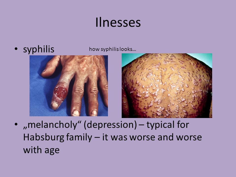 "Ilnesses syphilis. ""melancholy (depression) – typical for Habsburg family – it was worse and worse with age."