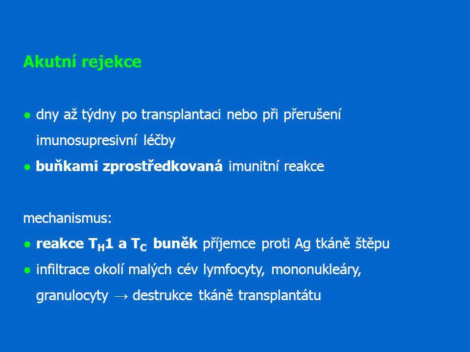 Akutní rejekce ● dny až týdny po transplantaci nebo při přerušení imunosupresivní léčby ● buňkami zprostředkovaná imunitní reakce mechanismus: ● reakce TH1 a TC buněk příjemce proti Ag tkáně štěpu ● infiltrace okolí malých cév lymfocyty, mononukleáry, granulocyty → destrukce tkáně transplantátu