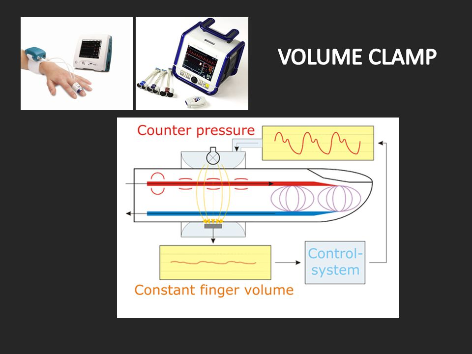 VOLUME CLAMP