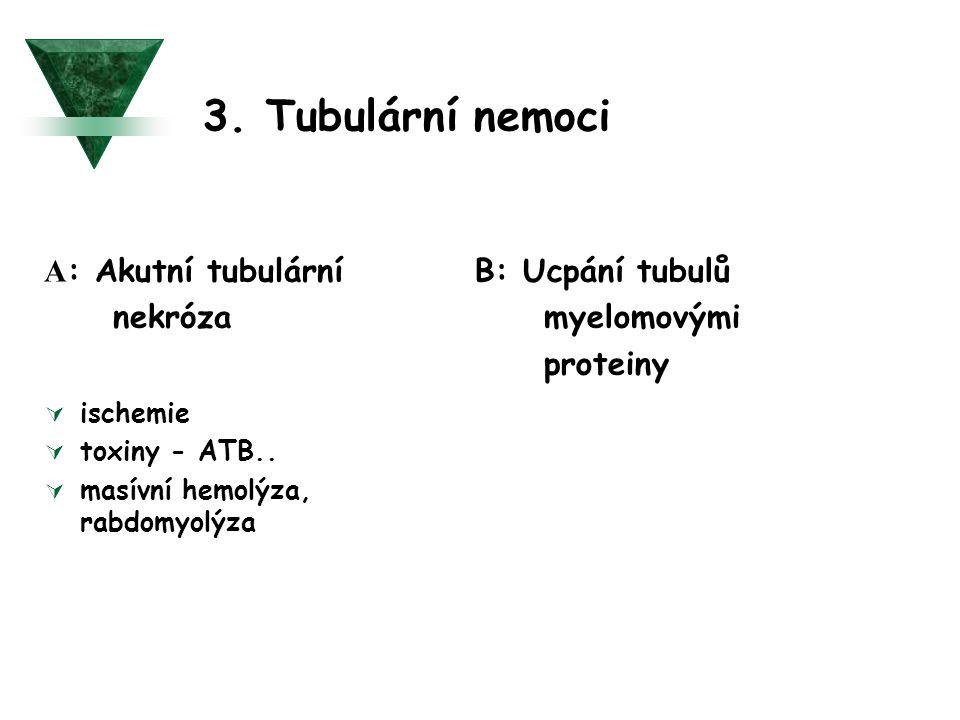 3. Tubulární nemoci A: Akutní tubulární nekróza B: Ucpání tubulů