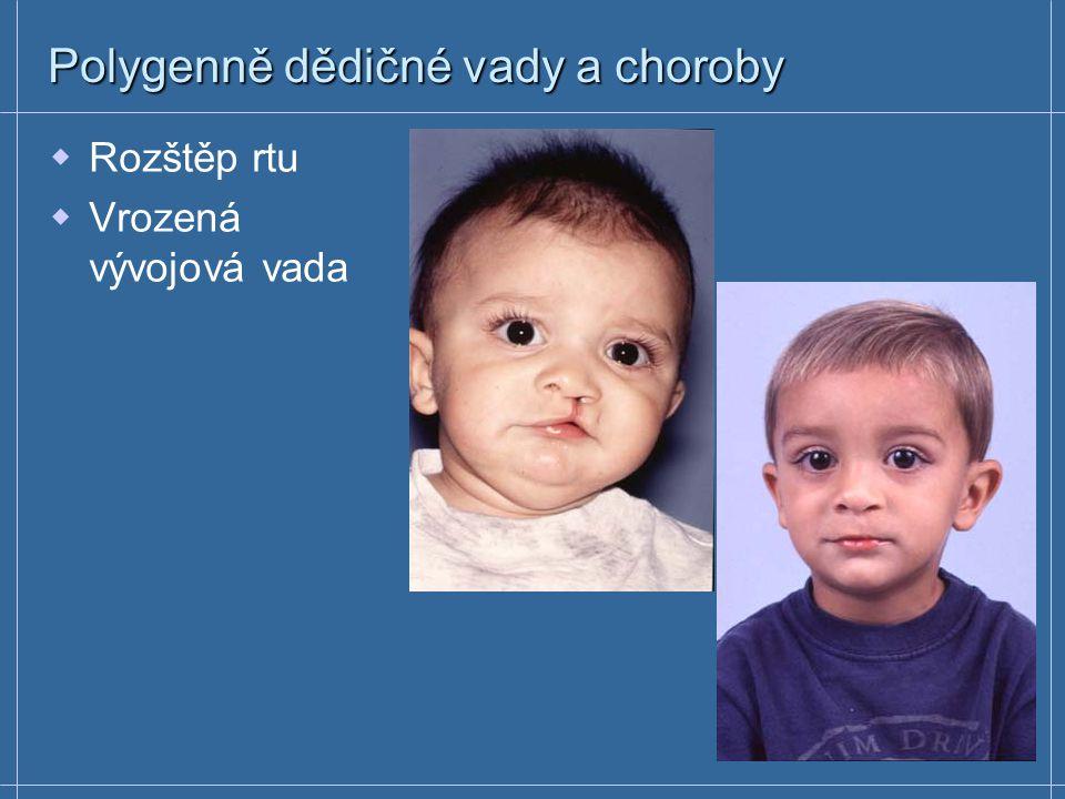 Polygenně dědičné vady a choroby