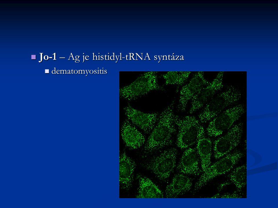 Jo-1 – Ag je histidyl-tRNA syntáza