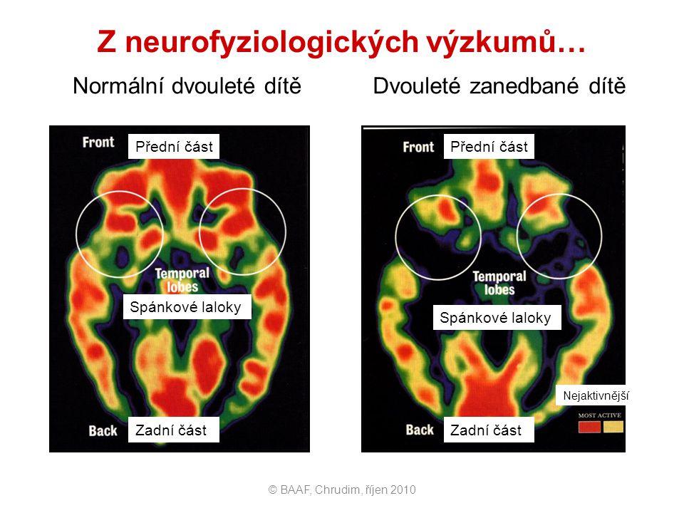 Z neurofyziologických výzkumů…